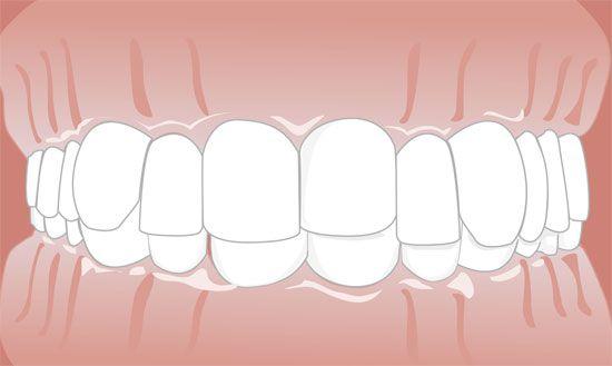 berühren sich zähne mit aufbissschiene